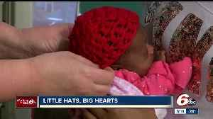 News video: Little hats, big hearts program delivered crocheted red caps to Eskenazi Hospital for newborns