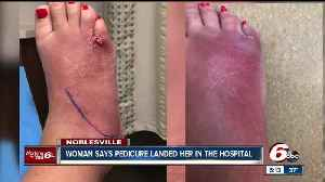 News video: Woman claims she got a serious foot infection after pedicure at a Noblesville spa