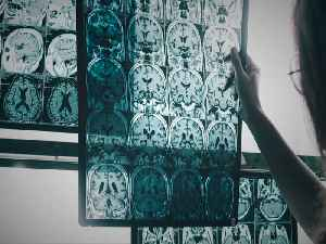 News video: The one thing cutting costs and changing lives for people with Alzheimer's