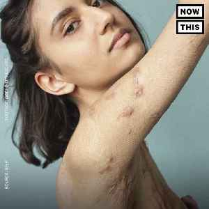 News video: Photo Series Changing How We Look At Scars