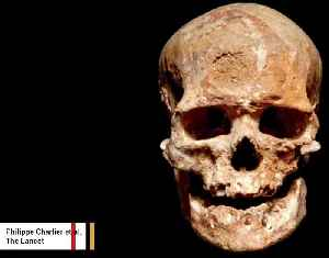 News video: Reconstruction Shows 28,000-Year-Old Man's Face Likely Covered In Tumors