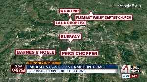 News video: Possible exposure to measles at 6 KCMO locations