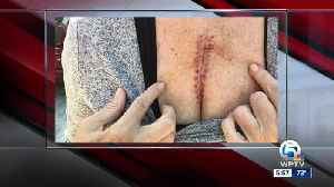 News video: West Palm Beach stabbing victim tells her story of survival
