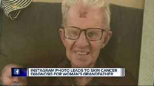 News video: Metro Detroit doctor spots cancer from Instagram photo, possibly saving man's life