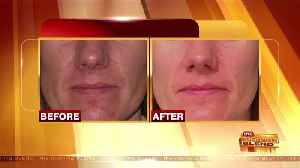 News video: Treating Rosacea and Protecting Your Skin