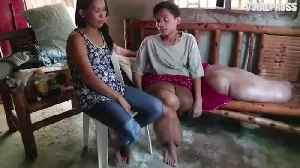 News video: Boy With 'Elephant Legs' Finally Helped