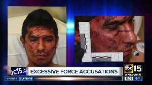 More excessive force by Mesa Police?