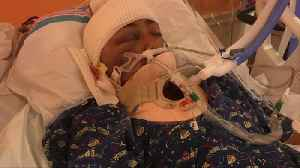 News video: 15-Year-Old New Jersey Boy in Coma After Being Struck in Hit-And-Run