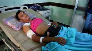 Hospitals in the Yemeni port of Hodeida are struggling to cope [Video]