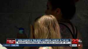 News video: Summer skin safety