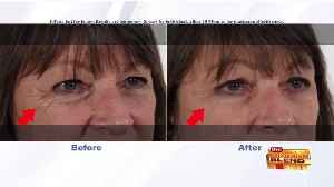 Visibly Erase Wrinkles in Minutes [Video]