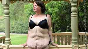 Super-slimmer left with the 'body of E.T.' after losing 16 stone sheds saggy 'cocoon' of excess skin&nbs [Video]