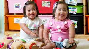 Rare Twins With Down Syndrome Are 1 in a Million [Video]