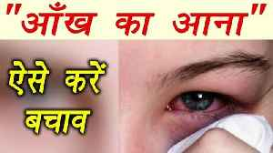 Conjunctivitis cure with Home Remedies | आँख आने का ऐसे &#x915 [Video]