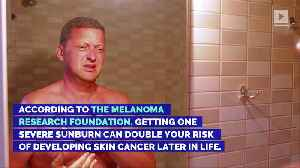 5 Surprising Skin Cancer Risk Factors [Video]