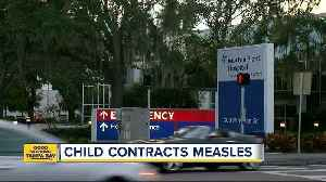 Child contracts measles in Pinellas County [Video]