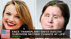 Face transplant gives suicide survivor second chance at life [Video]