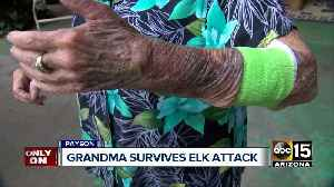 Payson grandmother attacked by mother elk [Video]