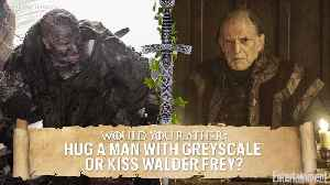 'Game of Thrones': Why Kit Harington Wants to Kiss Walder Frey [Video]