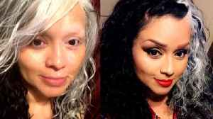 Woman's Skin Condition Makes Her Look Like Cruella de Vil [Video]
