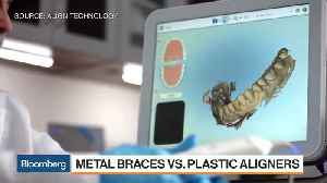 Orthodontists Skeptical About Removable, Clear Teeth Aligners [Video]