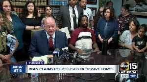 Man claims Phoenix police used excessive force [Video]