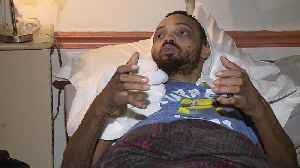 Man Believes County's Drinking Water Lead to Kidney Issues, Skin Lesions [Video]