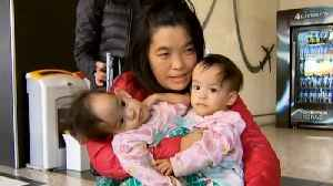 14-Month-Old Conjoined Twins Arrive in Australia for Separation Surgery [Video]