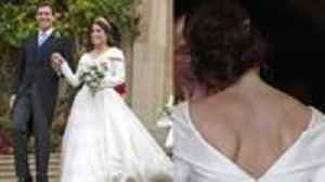 News video: Why Princess Eugenie Showed Off Large Surgery Scar For Royal Wedding