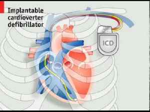 How pacemakers work | The Economist [Video]
