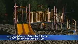 Coyote Attacks 3-Year-Old Girl Playing At SoCal Park [Video]