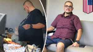Man's beer belly was actually 77-pound cancerous tumor [Video]