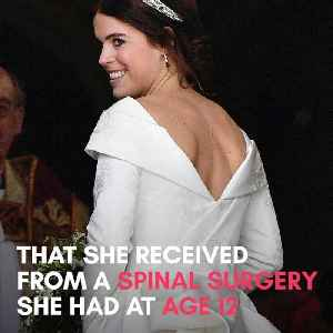 Princess Eugenie specifically designed her wedding dress to highlight her surgery scars [Video]
