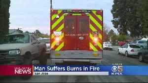 Man Badly Burned Escaping San Jose House Fire [Video]