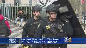 Student Slashed In Head At High School In Queens [Video]
