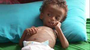 Trying to save Yemeni children who are too hungry to eat [Video]
