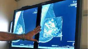 Common Breast Cancer Treatment Could Cause Memory Loss, Hot Flashes [Video]