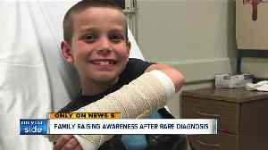 Ravenna boy excited to get back to his favorite sports after sidelined by rare bone disease [Video]