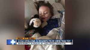 4-year-old loses parts of his colon, intestines after swallowing magnetic toys [Video]