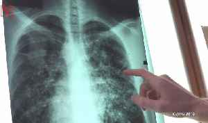A Breathalyzer Capable Of Detecting Cancer Could Save Millions [Video]