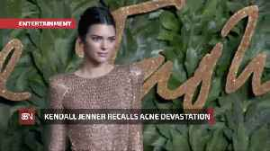 Kendall Jenner Had Devastating Acne Breakouts As A Teenager [Video]