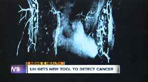 Game-changing new tool at University Hospitals helps detect breast cancer sooner [Video]