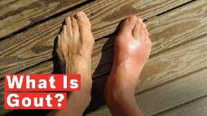 What Is Gout? [Video]