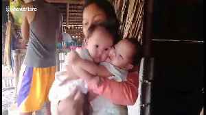 Filipino mother pleads for help to separate her four-month-old conjoined twin daughters [Video]