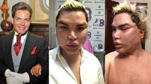 New year, new face! Rodrigo Alves warns others about spider web procedures after 200 threads and fibrosis removed during facial  [Video]