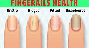 8 Things Your Nails Can Tell You About Your Health [Video]