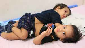 The Conjoined Twin Brothers Who Survived Separation | BORN DIFFERENT [Video]