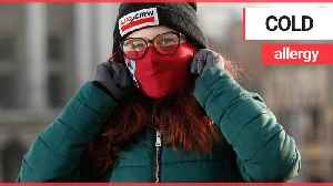 Woman who's allergic to winter has to wear face mask whenever she goes outside [Video]