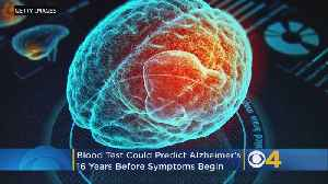 Blood Test Could Detect Alzheimer's Disease Up To 16 Years Before Symptoms Begin, Study Says [Video]