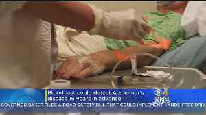 Blood Test Could Detect Alzheimer's Disease 16 Years In Advance [Video]